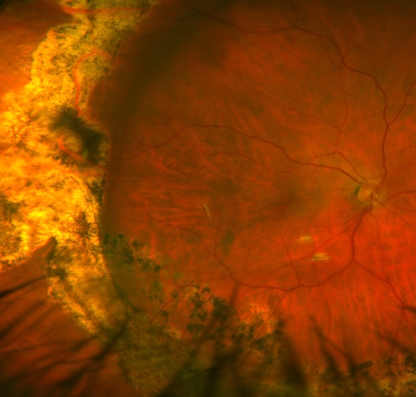 Retinal Detachment Treated